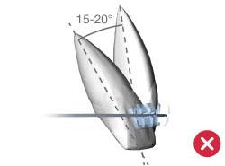 incisivi-arco-tradizionale1