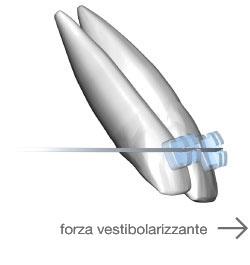 incisivi-forze-vestibolizzanti